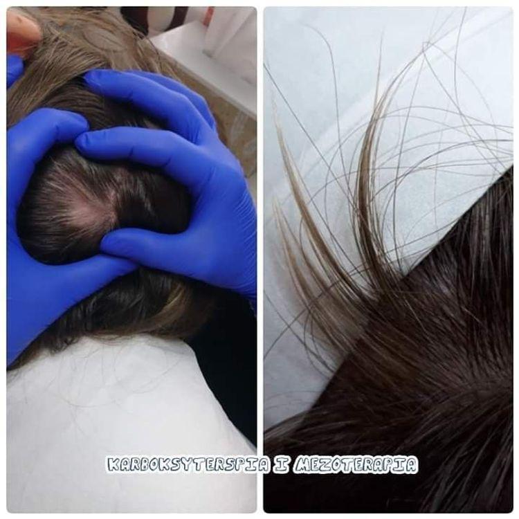 Efekty terapii - łysienie plackowate.
