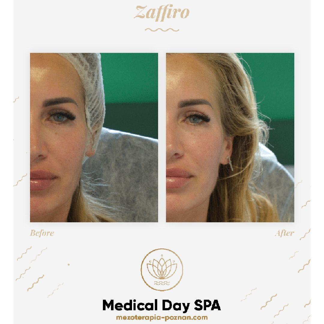 mezoterapia-poznan.com