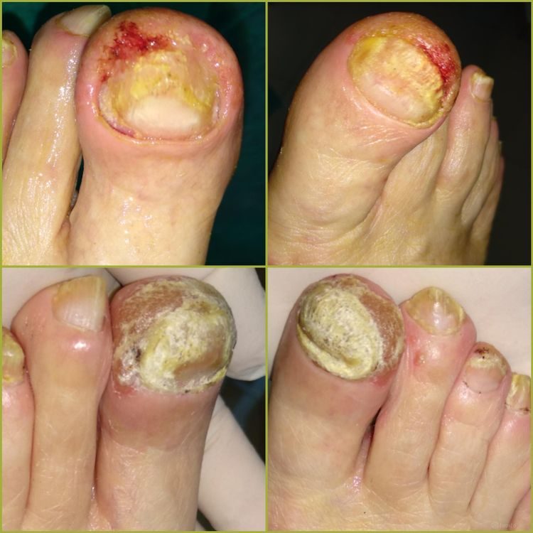 Oczyszczenie paznokcia zmienionego chorobowo