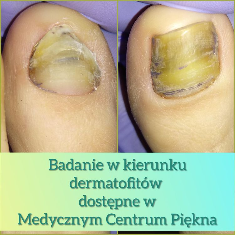 Badanie dermatofitu