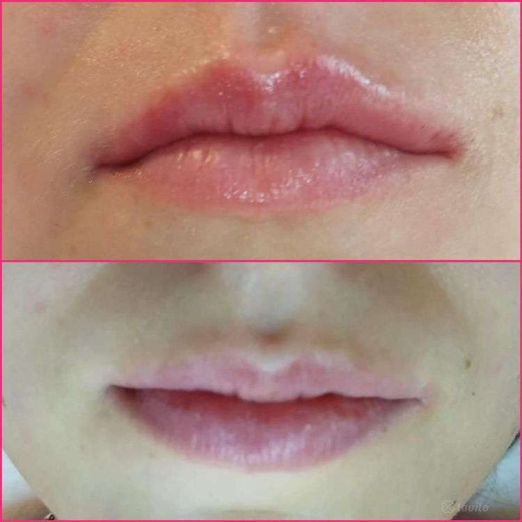 Wypełnianie i modelowanie ust kwasem hialuronowym 1ml