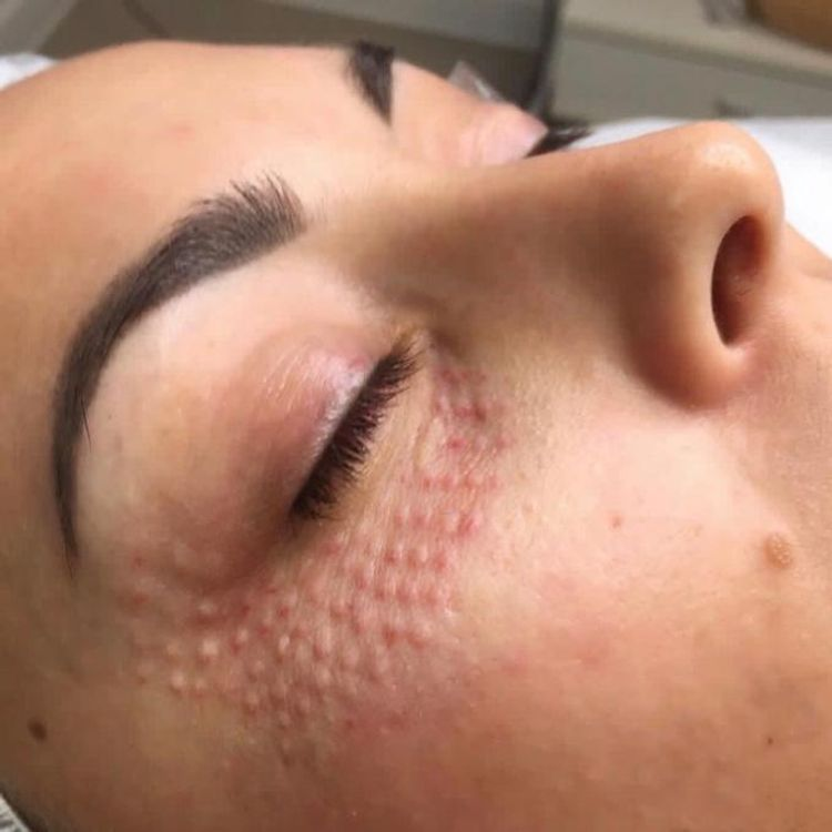 Mezeterapia igłowa okolicy oka
