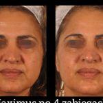 LASER PRIME Body &  Face