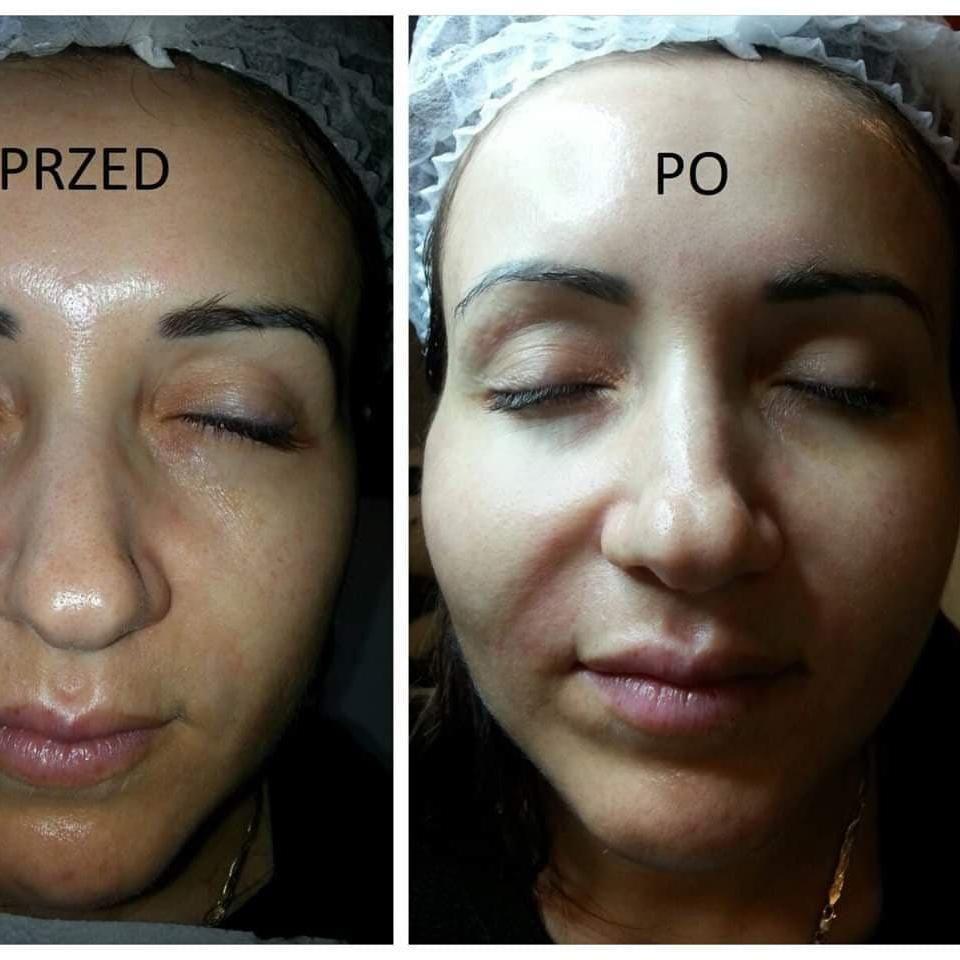 Salon Kosmetyczny - Klinika Zdrowego Włosa i Skóry Nathalie