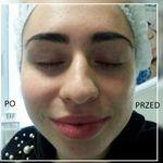 Klinika Zdrowego Włosa i Skóry Nathalie - inspiration