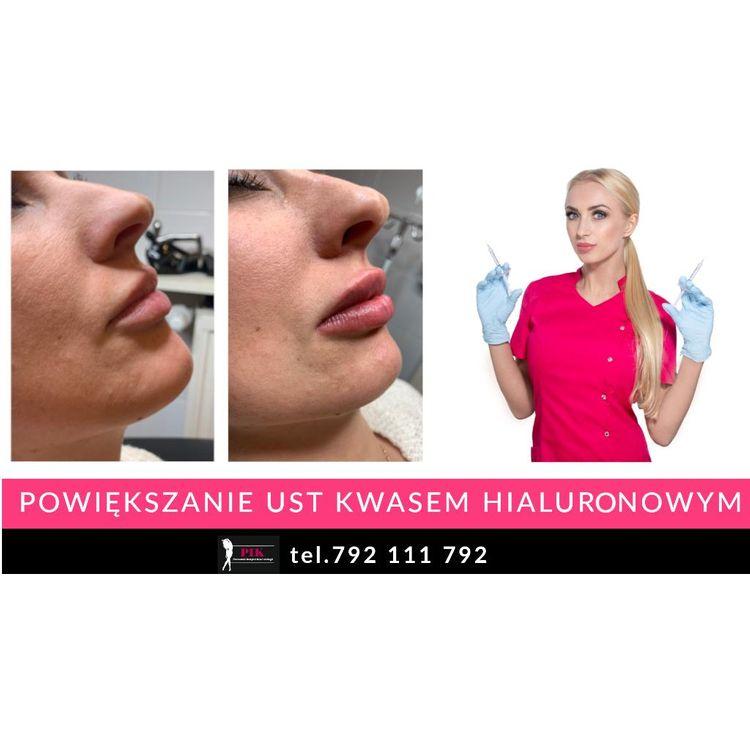 Zapraszamy na zabieg powiększenia i modelowania ust kwasem hialuronowym.