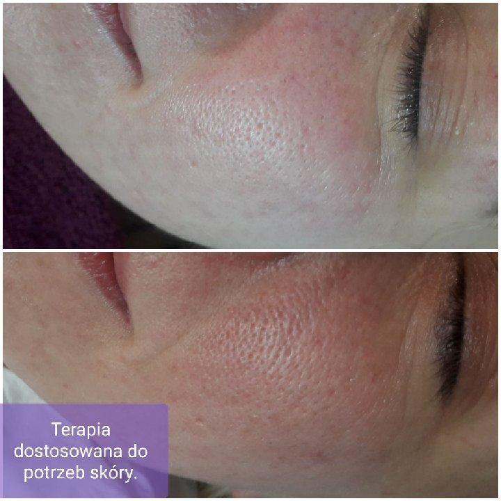 Salon Kosmetyczny - Dama Pik - Profesjonalne Usługi Kosmetologiczne
