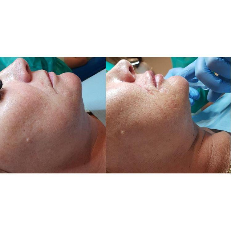 Zapraszamy na zabiegi z zakresu medycyny estetycznej. W naszej ofercie m.in: ➡️powiększanie i modelowanie ust ➡️wypełnianie bruzd nosowo-wargowych ➡️wolumetria twarzy  ➡️mezoterapia igłowa ➡️lipoliza