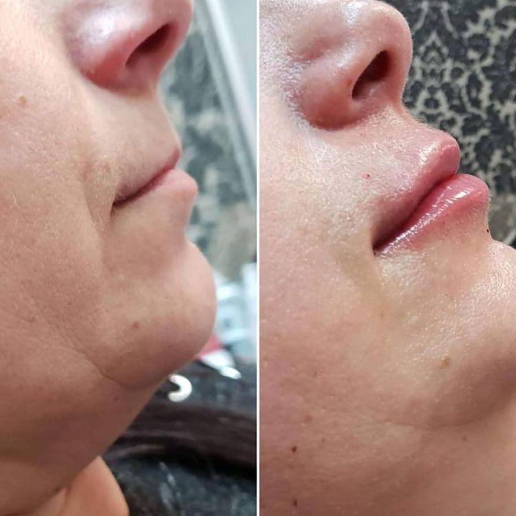 Która kobieta nie marzy o pełnych, zmysłowych i kuszących ustach??💋💋💋💋 Za ich pomocą wyrażamy emocje i uwodzimy. Piękne usta są jednym z najbardziej docenianych elementów urody na świecie.👄👄