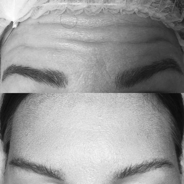 Botox, przed i po.