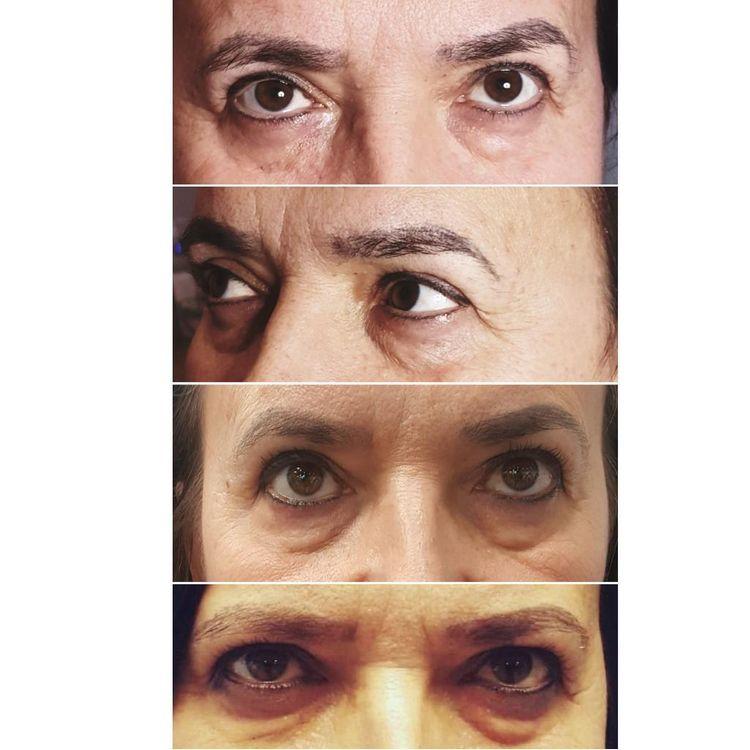 b'Efekty karboksyterapii okolic oczu'
