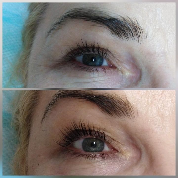 Salon Kosmetyczny - EVE - Depilacja laserowa, kosmetologia, solarium