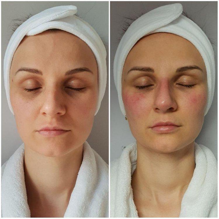 Dolina łez, policzki, modelowanie nosa kwasem hialuronowym. Efekt utrzymuje się do 8-12 miesięcy. Zdjęcie przed/po