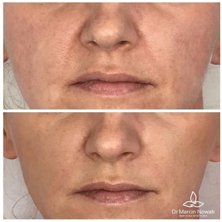Korekcja bruzd nosowo-wargowych kwasem hialuronowym