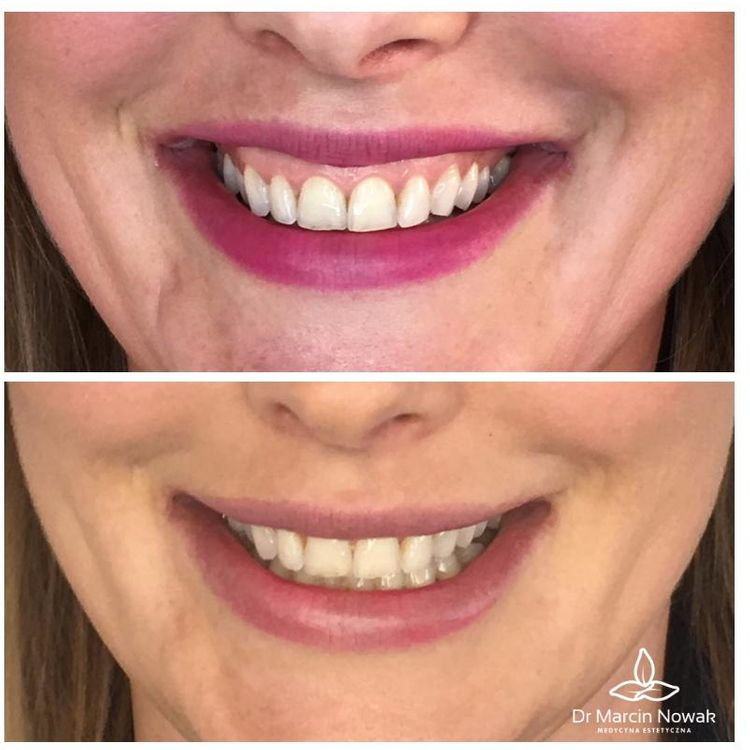 Korekcja uśmiechu dziąsłowego - botoks