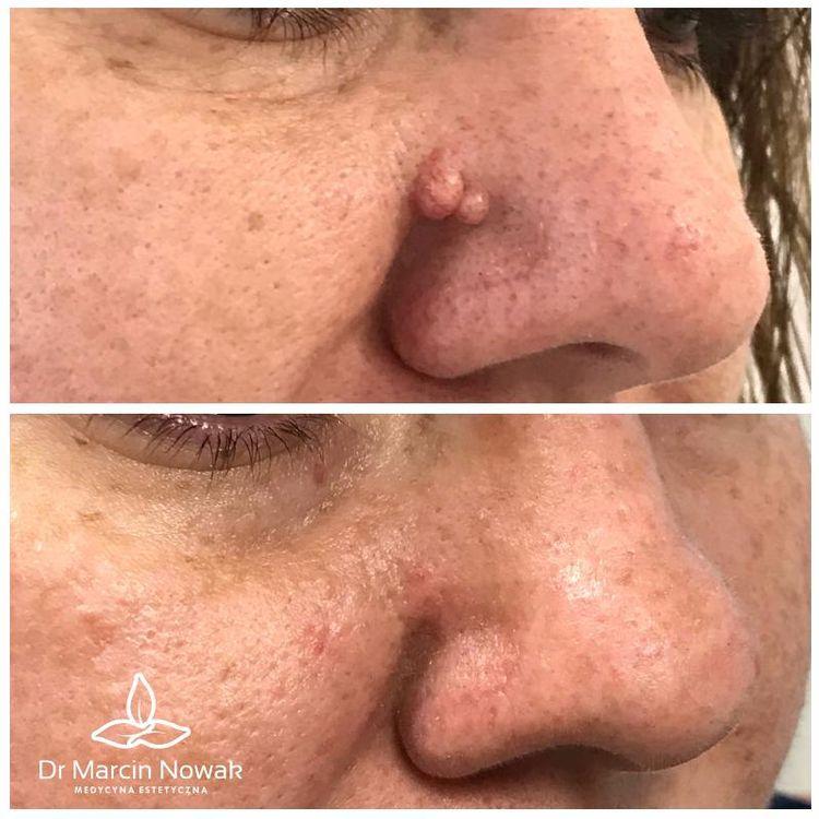 Usunięcie brodawki okolicy nosa